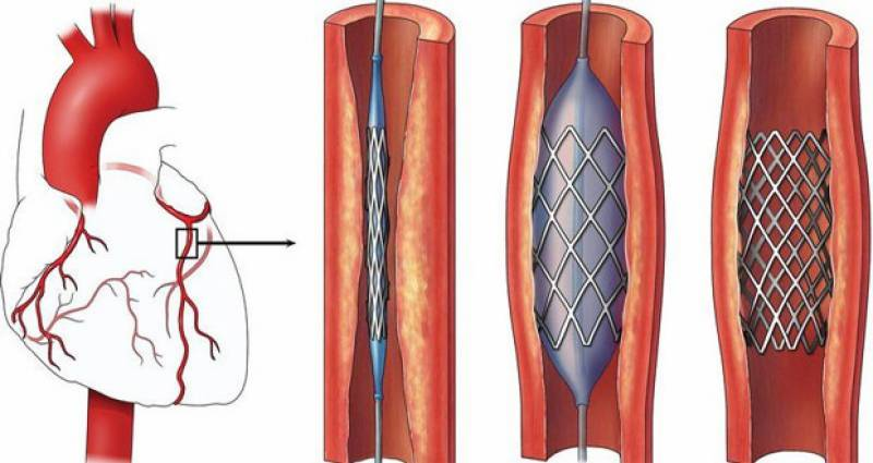 NUST first in Pakistan to produce cardiac stents