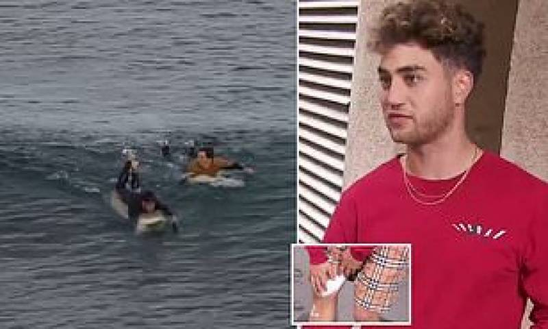 French surfer punches shark, survives attack in Australia