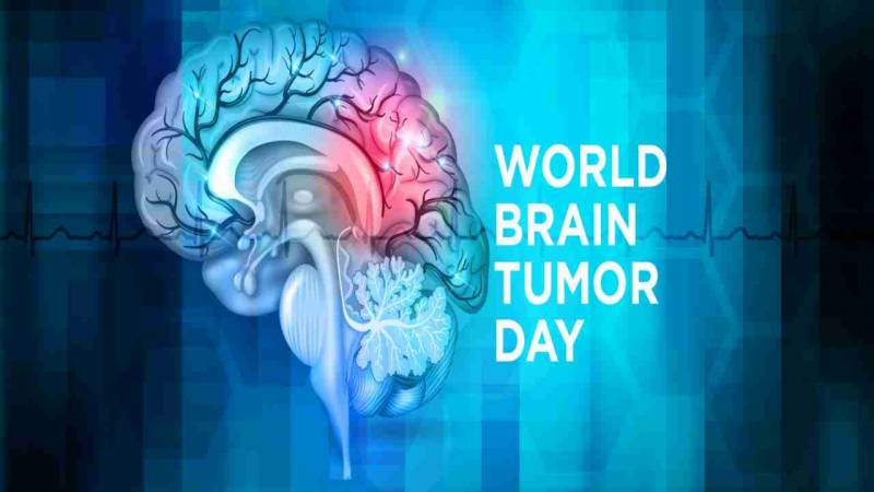 Early diagnosis and latest technology vital to treat brain tumour