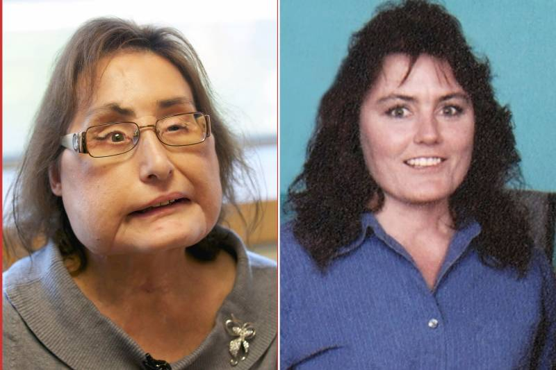 First US woman who received a partial face transplant dies at 57