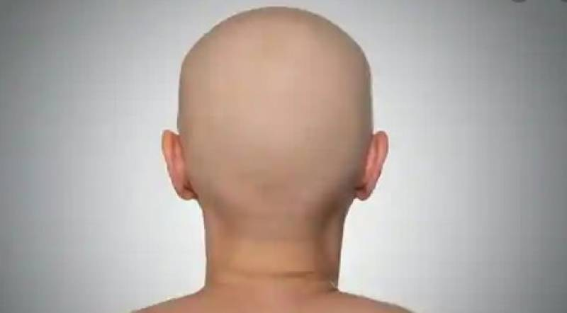 Woman's head shaved off for 'stepping out of home'